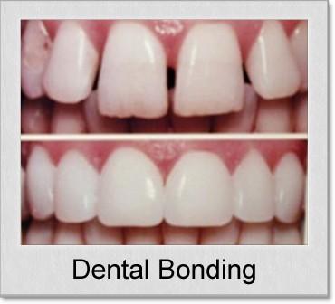 dental bonding denton tx