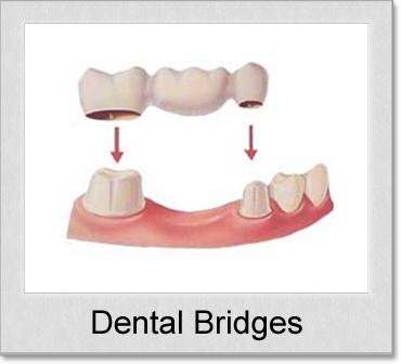 dental bridges denton tx