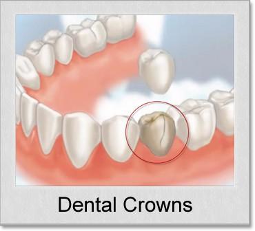 dental crown denton tx