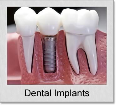 dental implants denton tx