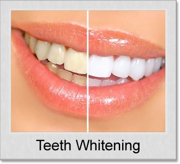 teeth whitening denton