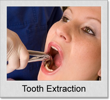 tooth extraction denton texas
