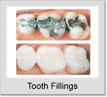 What do cavity fillings look like 11