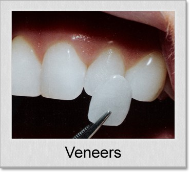 veneers denton texas