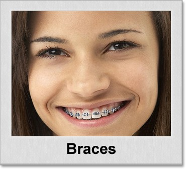 braces denton texas