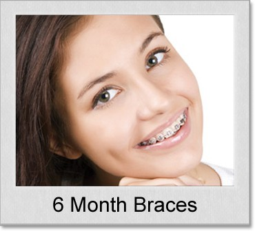 six month braces
